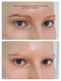 Alopecia Microblading Eyebrows by El Tru