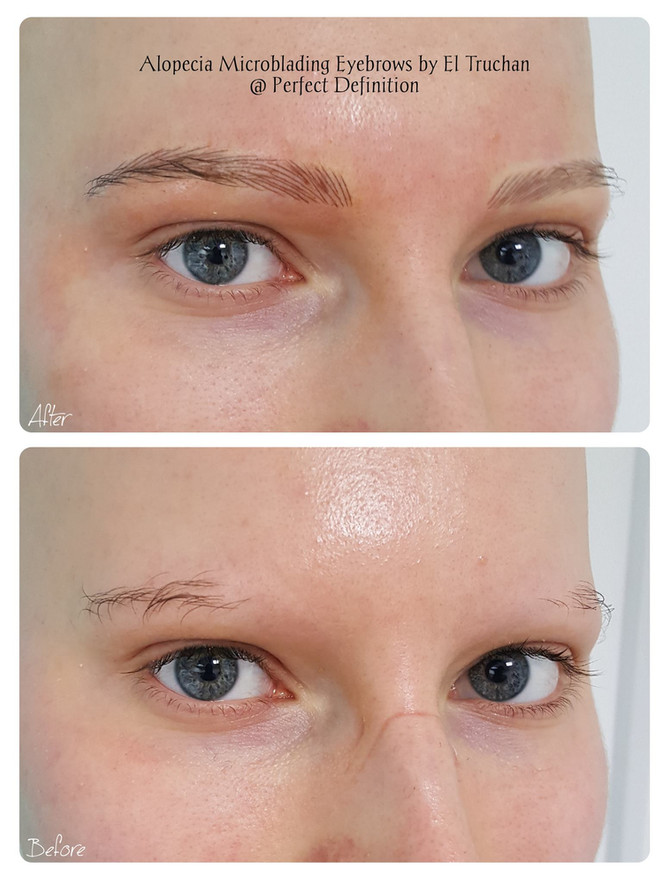 Alopecia Microblading Eyebrows by El Truchan @ Perfect Definition