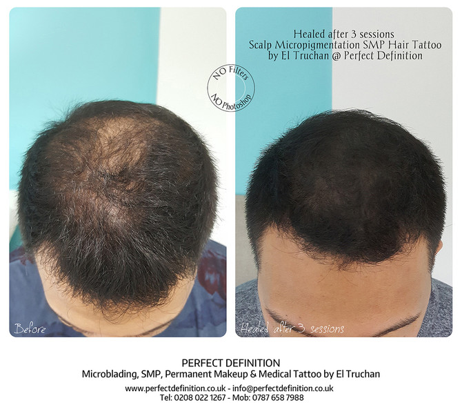 Healed after 3 sessions Scalp Micropigmentation SMP Hair Tattoo