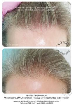 First session Female Scalp Micropigmenta