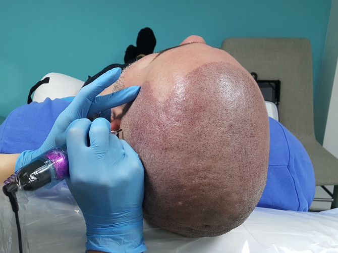 Scalp Micropigmentation Hair Tattoo SMP by El Truchan @ Scalp Micro Definition