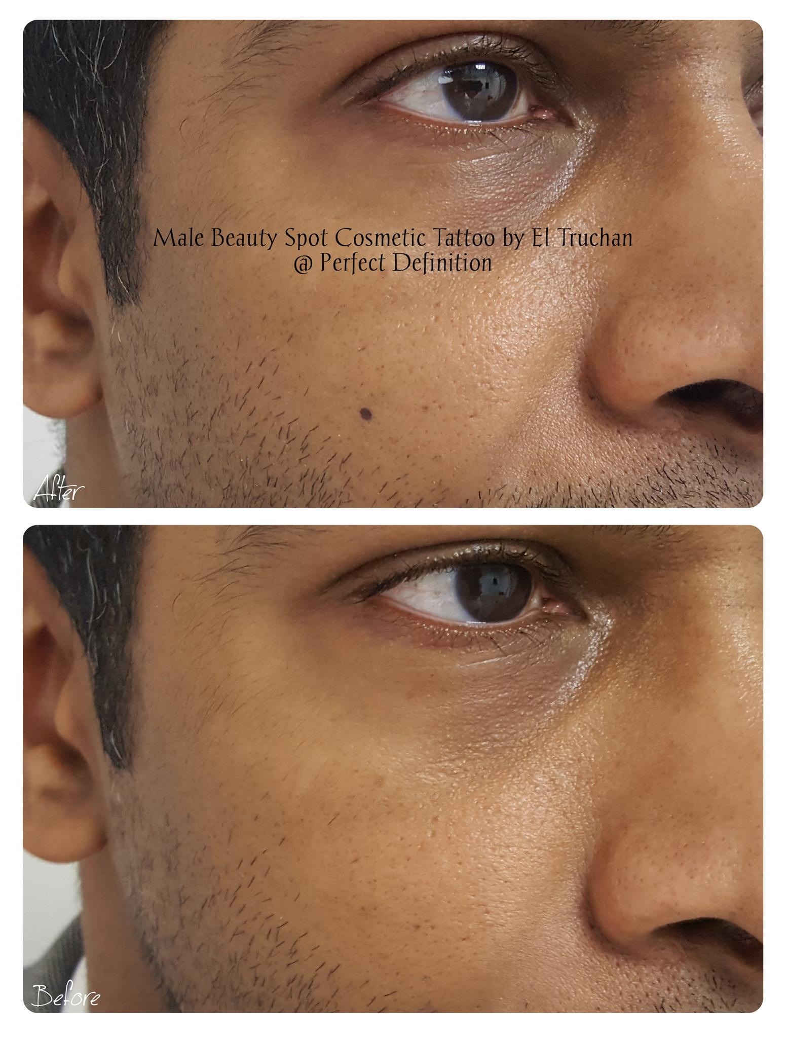 Male Beauty Spot Cosmetic Tattoo