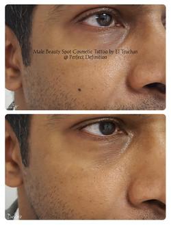 Male Beauty Spot Cosmetic Tattoo