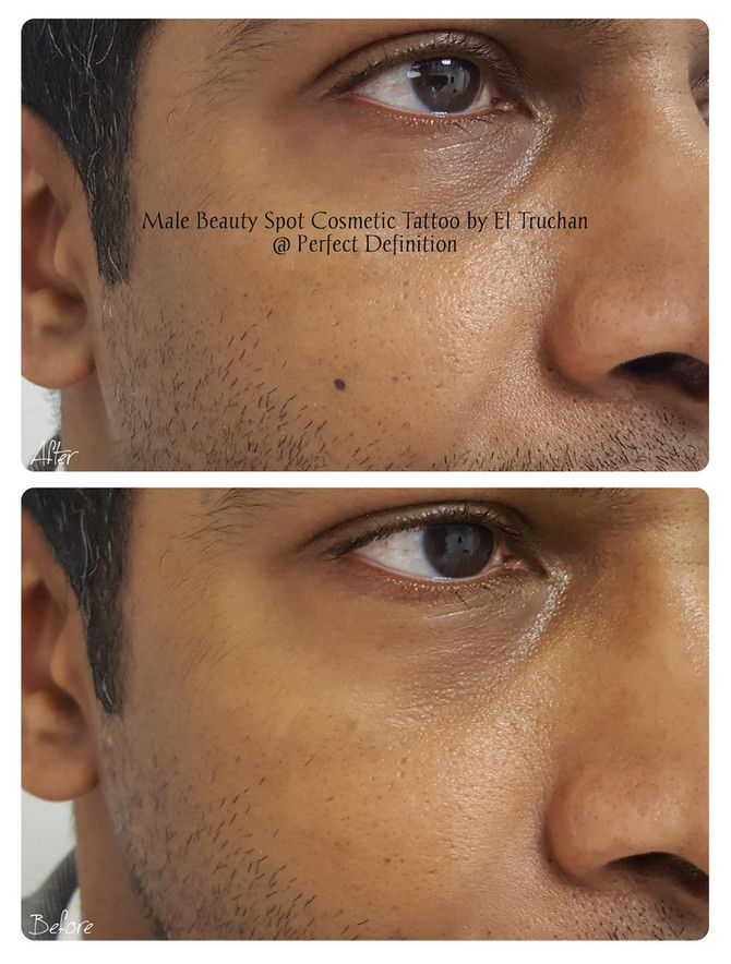 Male Beauty Spot Cosmetic Tattoo @ Perfect Definition by El Truchan