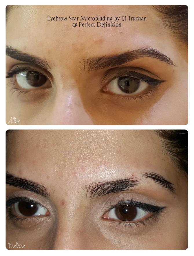 Eyebrow Scar Microblading by El Truchan @ Perfect Definition