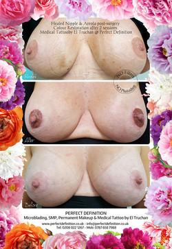 Healed Nipple & Areola post-surgery Colo