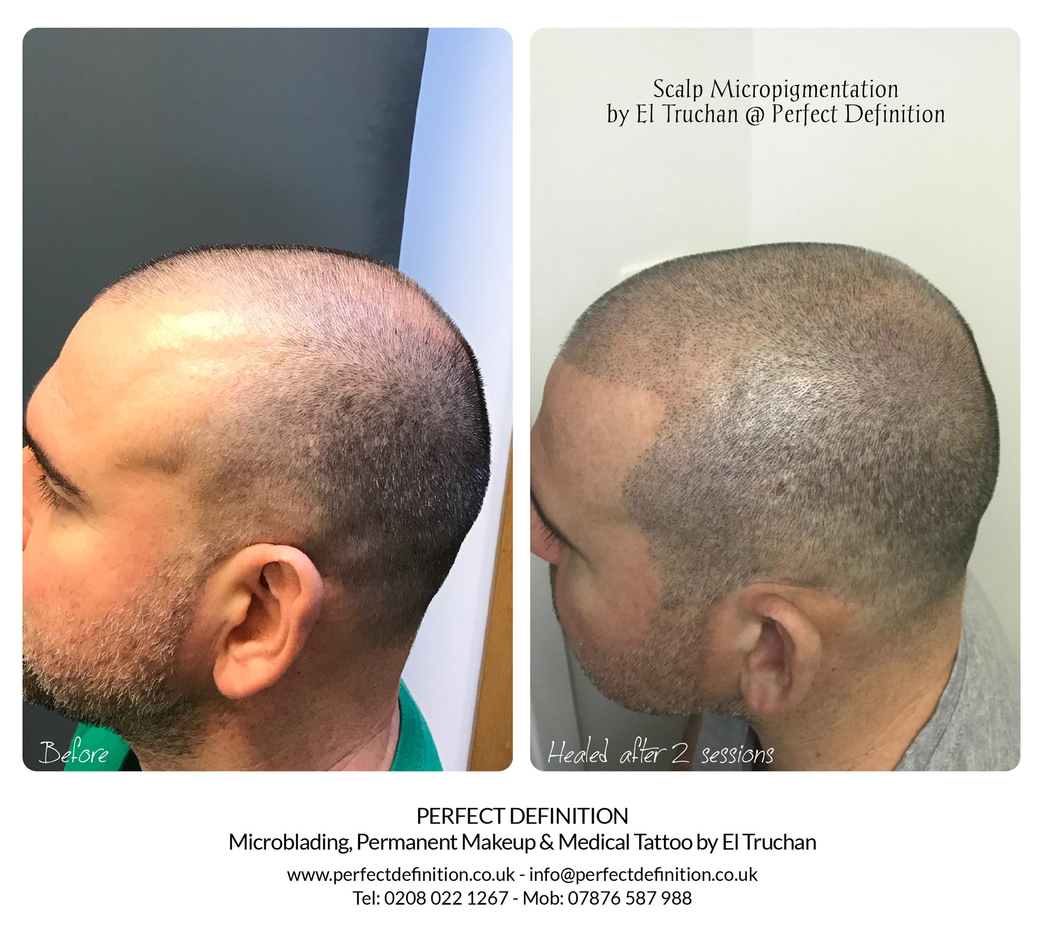 Scalp Micropigmentation SMP by El Trucha