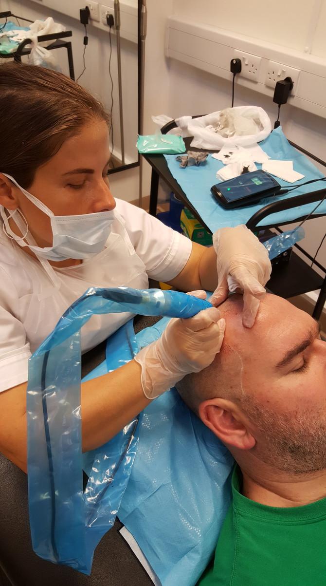 SMP Hair tattoo Scalp Micropigmentation by El Truchan @ Scalp Micro Definition