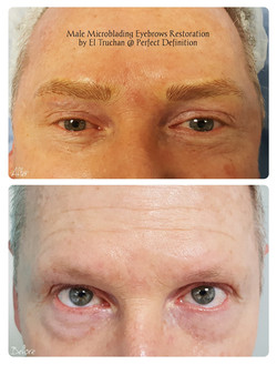 Male Microblading Eyebrows Restoration b