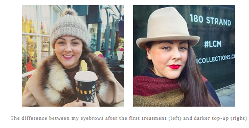 London Blogger had a treatment