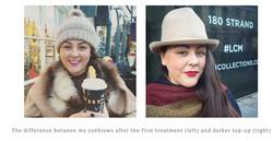 London Blogger had a treatment