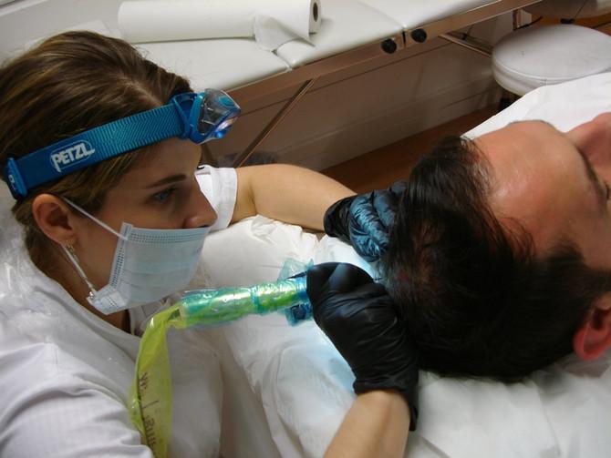 Scalp Micropigmentation Hair Simulation Tattoo by El Truchan CPCP @ Scalp Micro Definition