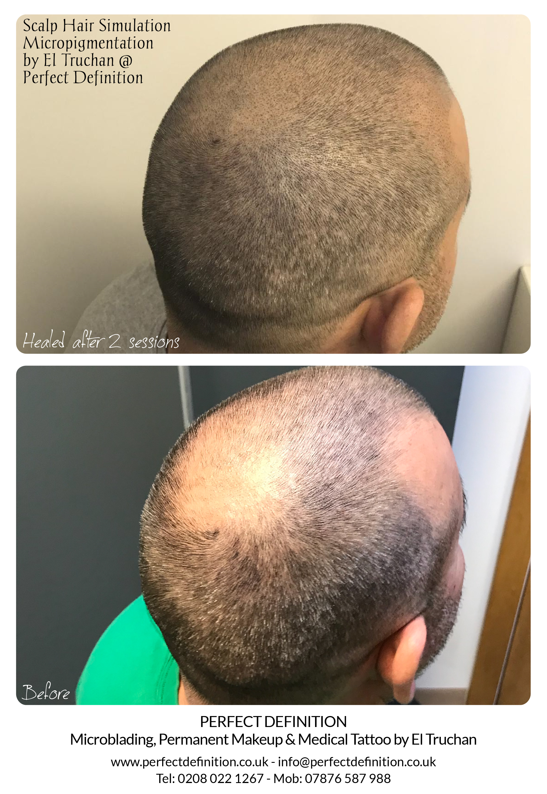 Scalp Hair Micropigmentation