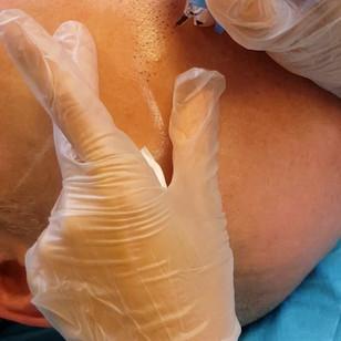 Scalp Micropigmentation Baldness SMP by