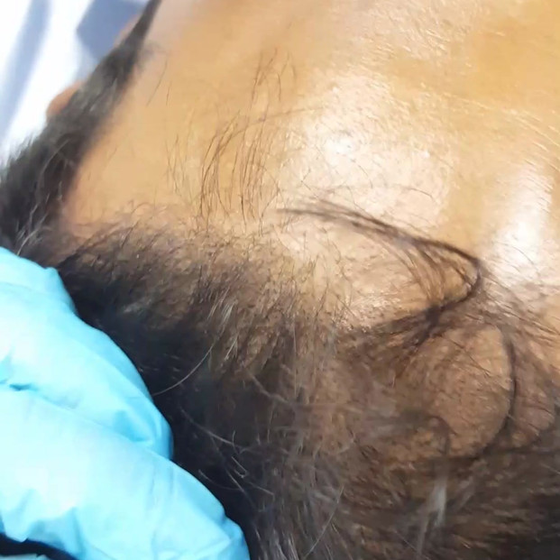 Scalp Micro Pigmentation SMP by El Truch