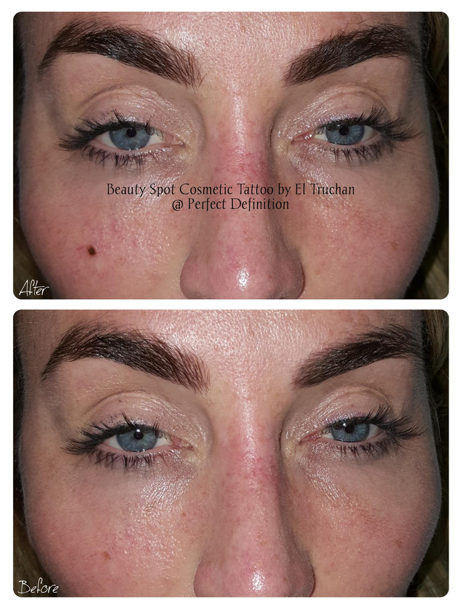 Beauty Spot Cosmetic Tattoo @ Perfect Definition by El Truchan
