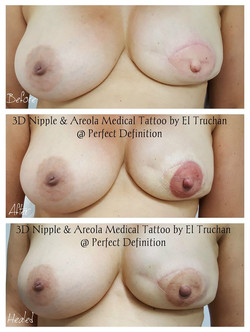 3D Nipple & Areola Reconstruction medica
