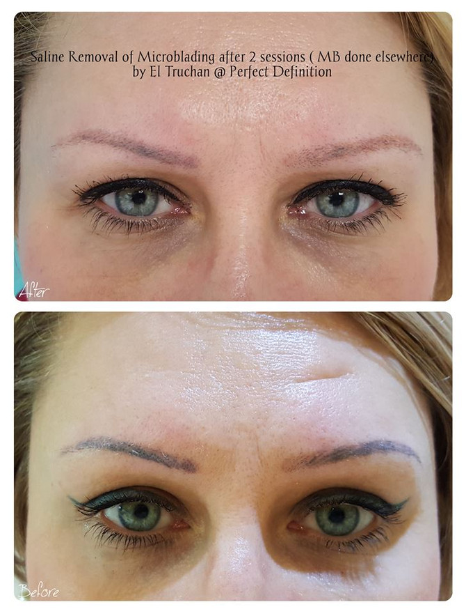 Saline Removal of Microblading after 2 sessions ( MB done elsewhere) by El Truchan @ Perfect Definit