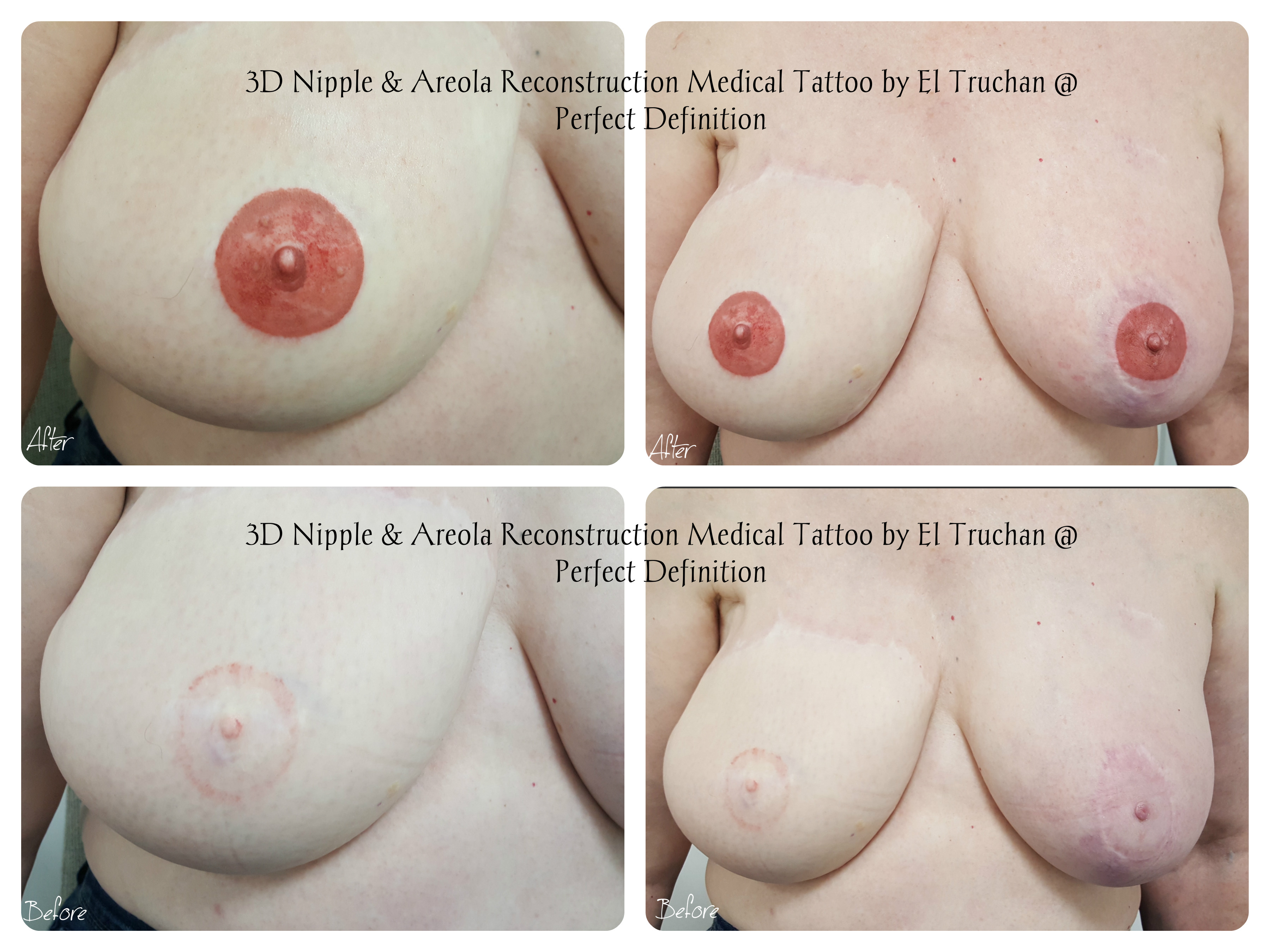 3d Nipple & Areola reconstruction by el truchan at perfect definition london uk