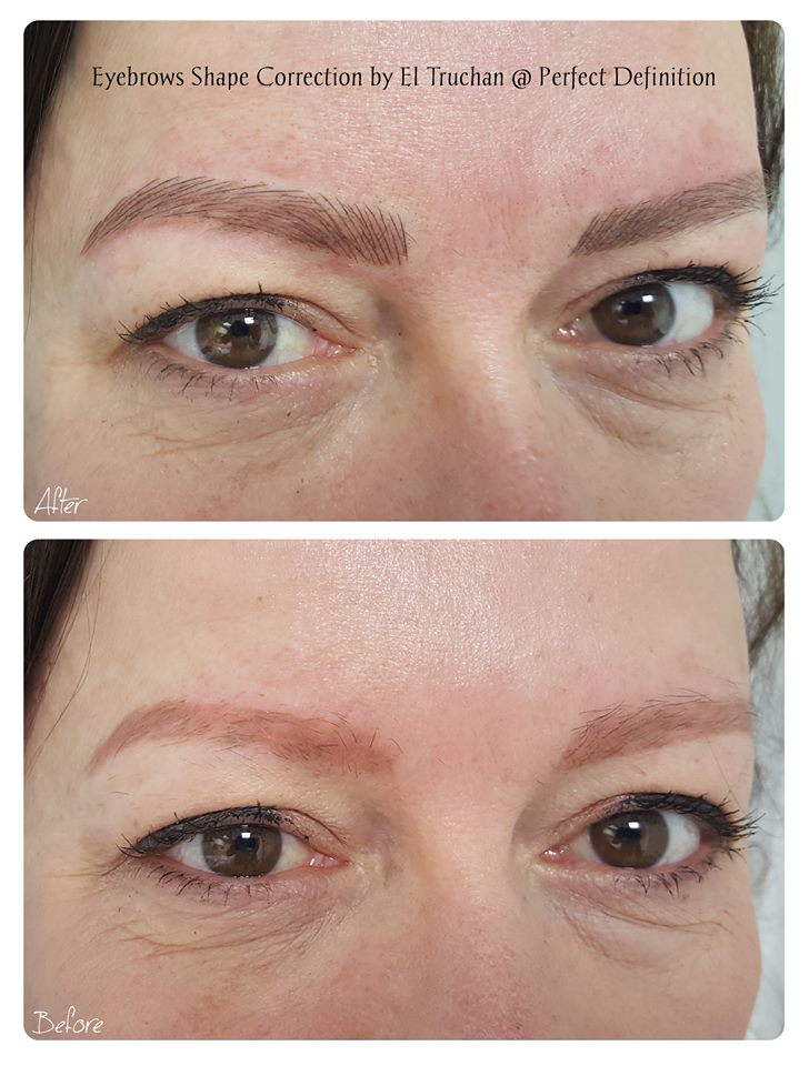 Eyebrow Shape Correction