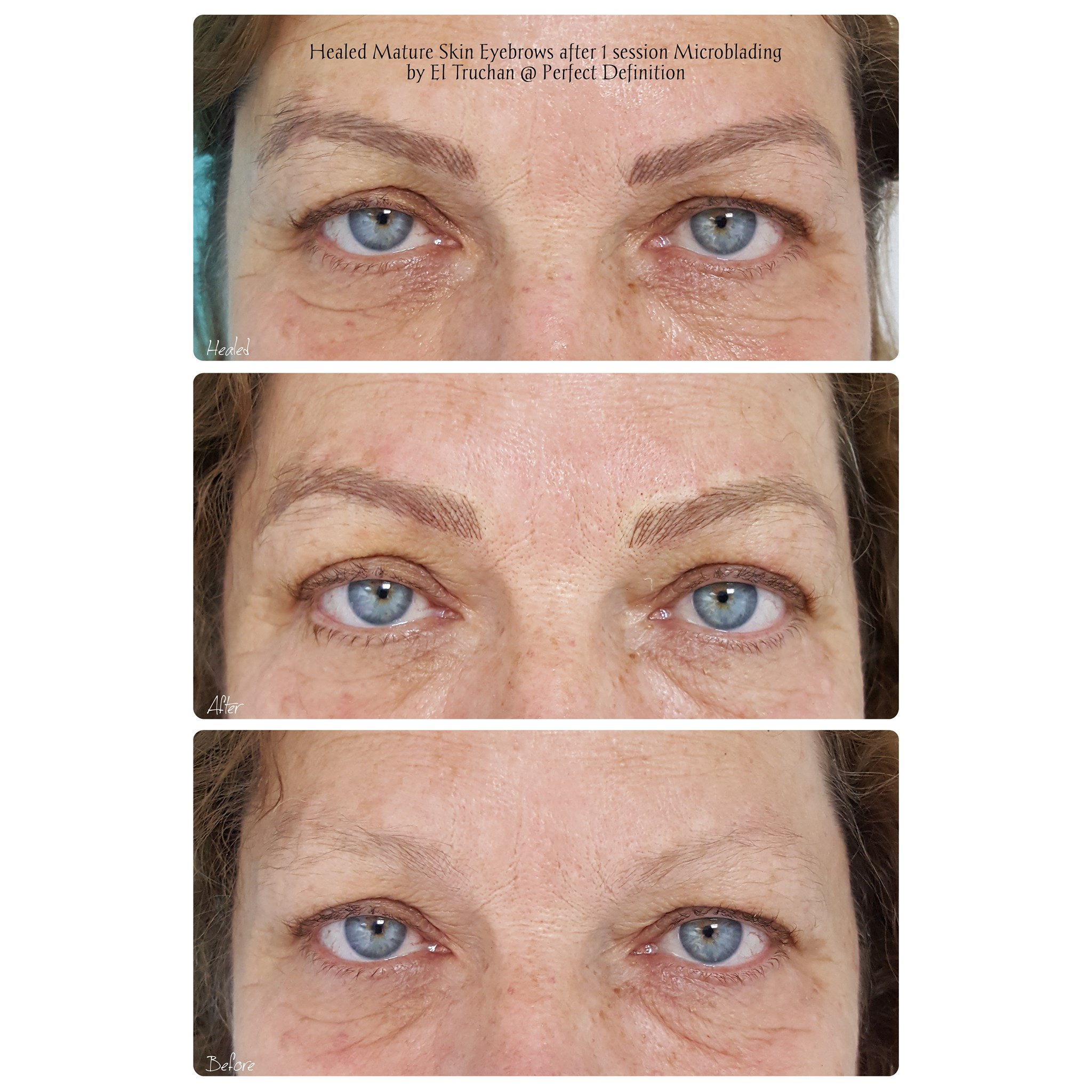 Healed Mature Skin Eyebrows after 1 sess