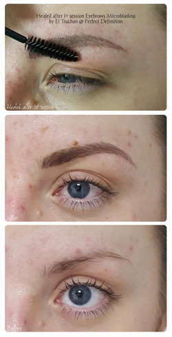 Healed after 1 session Eyebrows Microbla