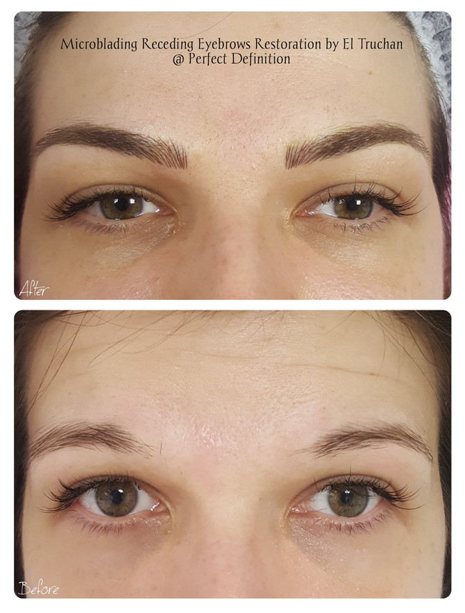 Microblading Receding Eyebrows Restoration by El Truchan @ Perfect Definition