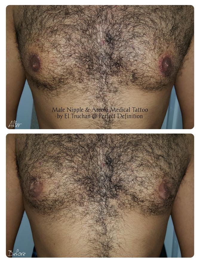 Male Nipple & Areola Medical Tattoo by El Truchan @ Perfect Definition