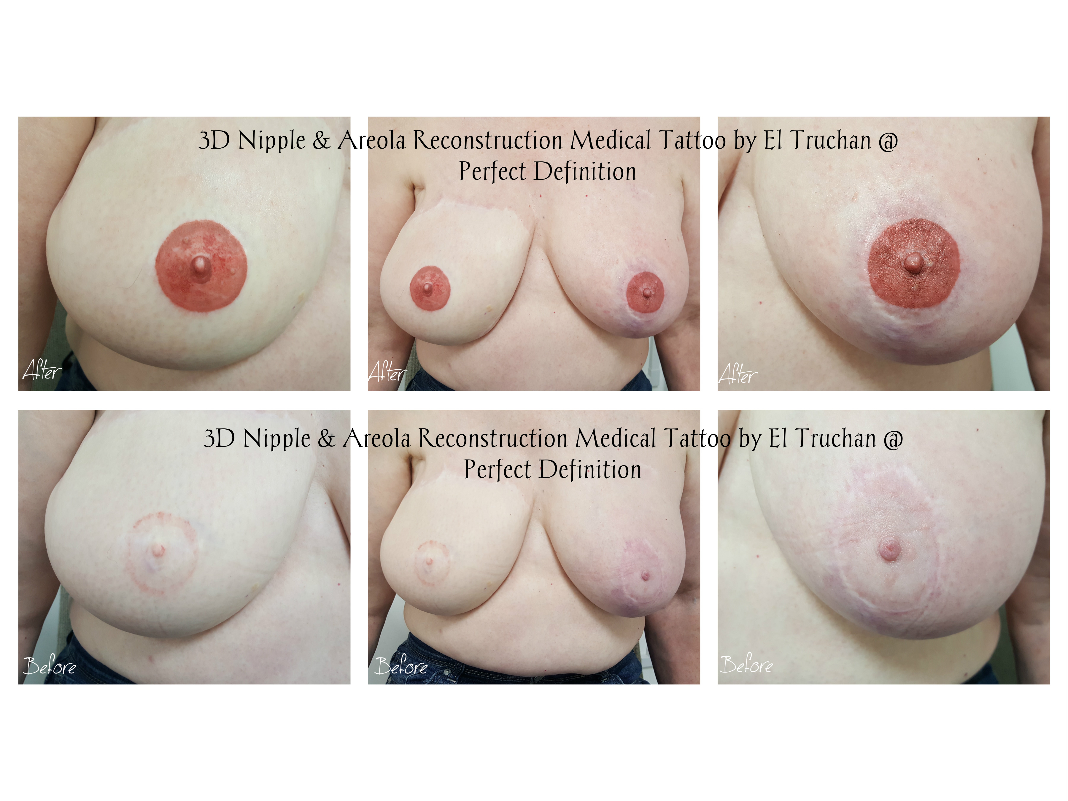 3d Nipple & Areola reconstruction by el truchan at perfect definition london