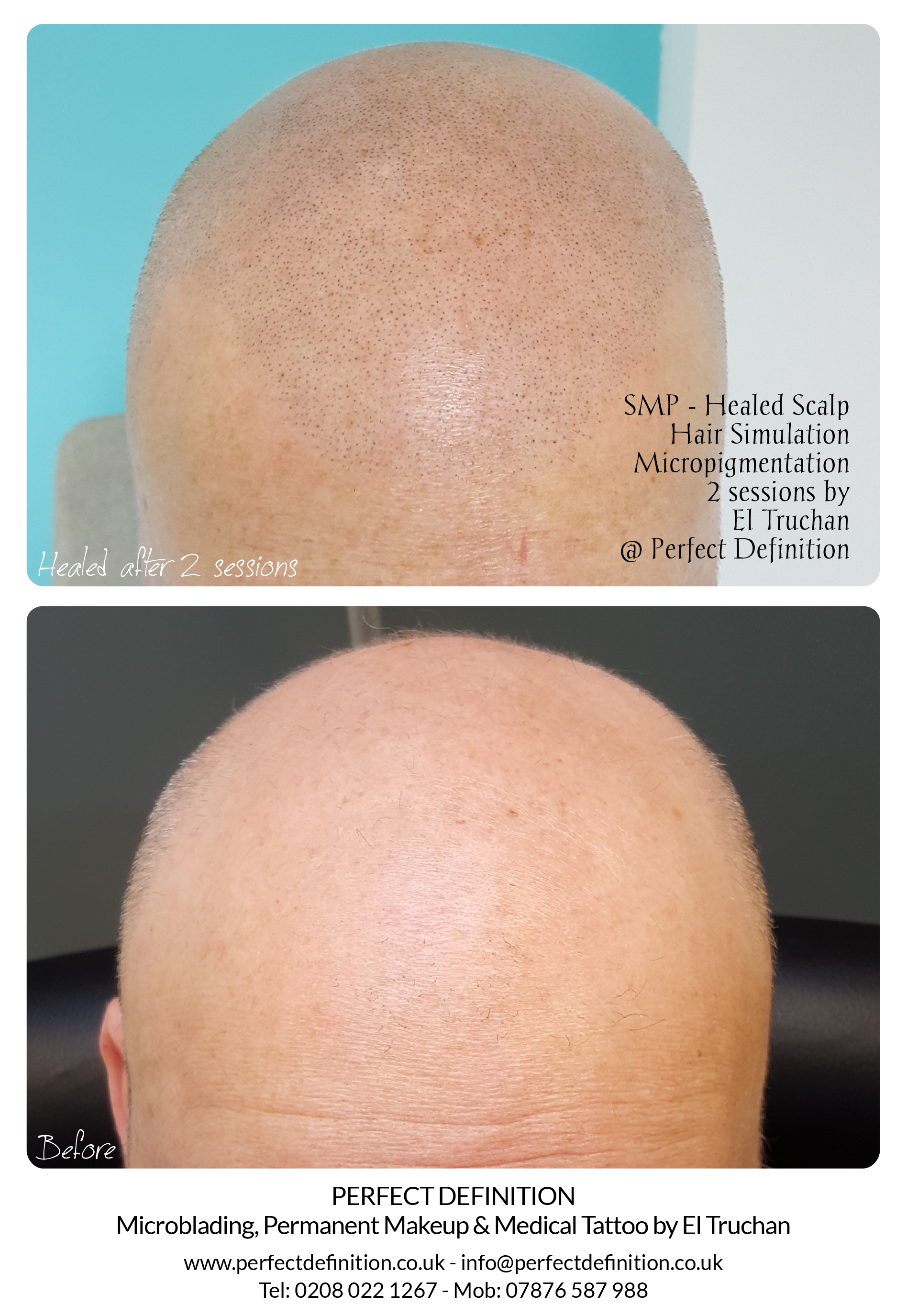 SMP - Healed Blond Scalp Hair Simulation