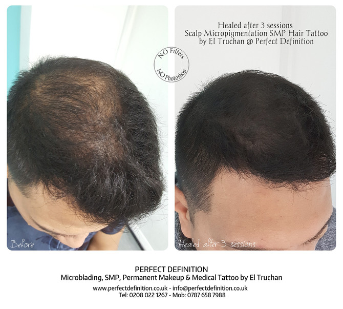 Healed after 3 sessions Scalp Micropigmentation SMP Hair Tattoo by El Truchan @ Perfect Definition