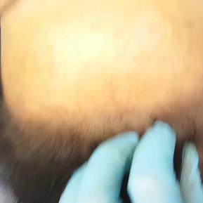 2nd Hairline Micopigmentation SMP Female