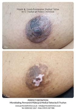 Nipple & Areola Restoration Medical Tatt