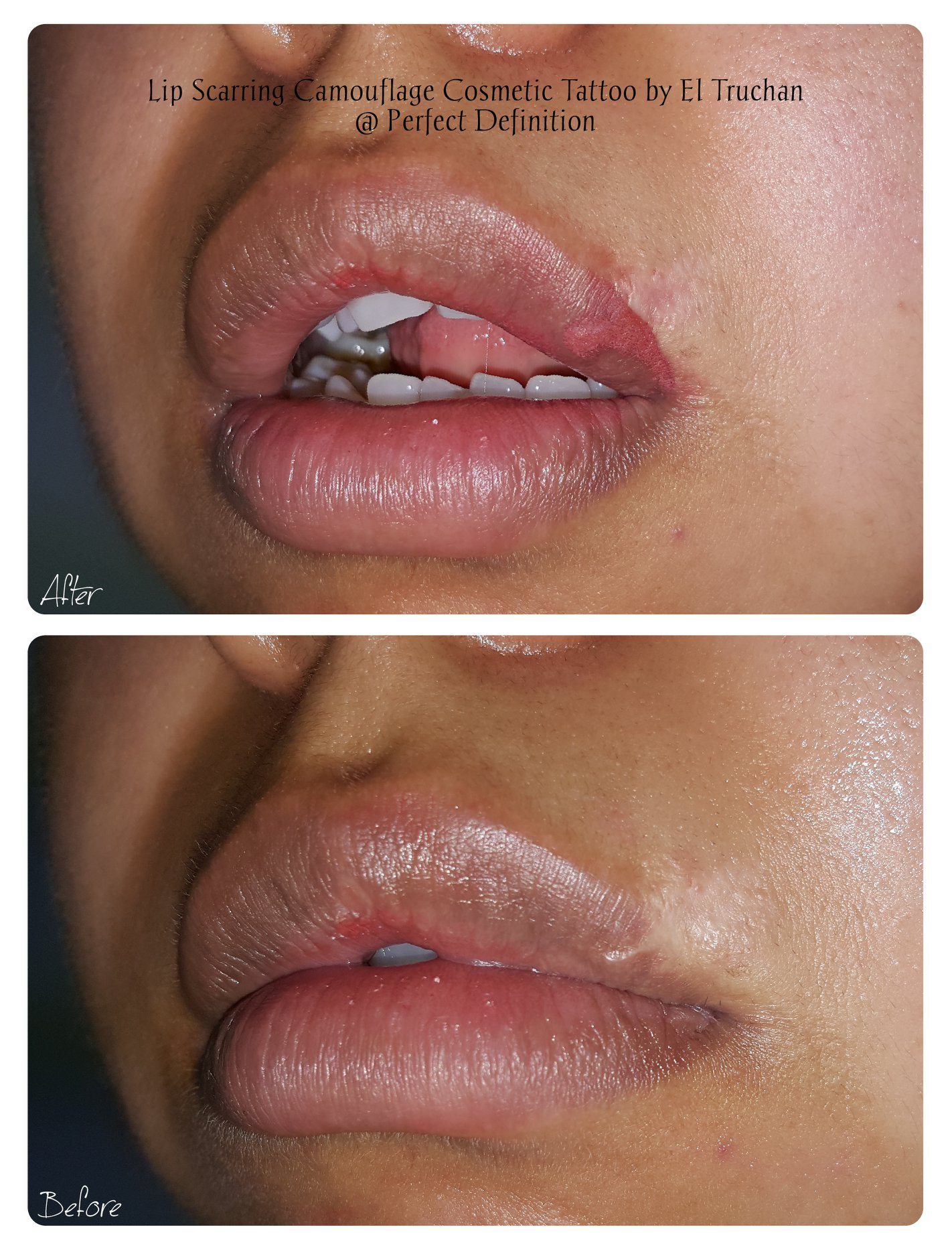 Lip Scarring Camouflage Cosmetic by El T