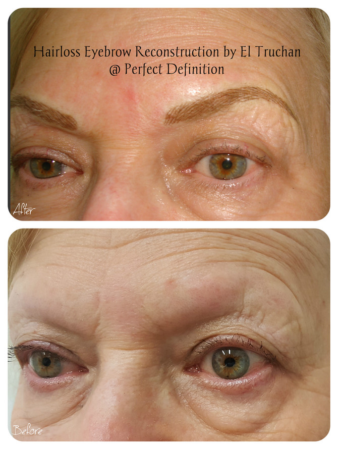 Hairloss Eyebrow Reconstruction by El Truchan C.P.C.P.