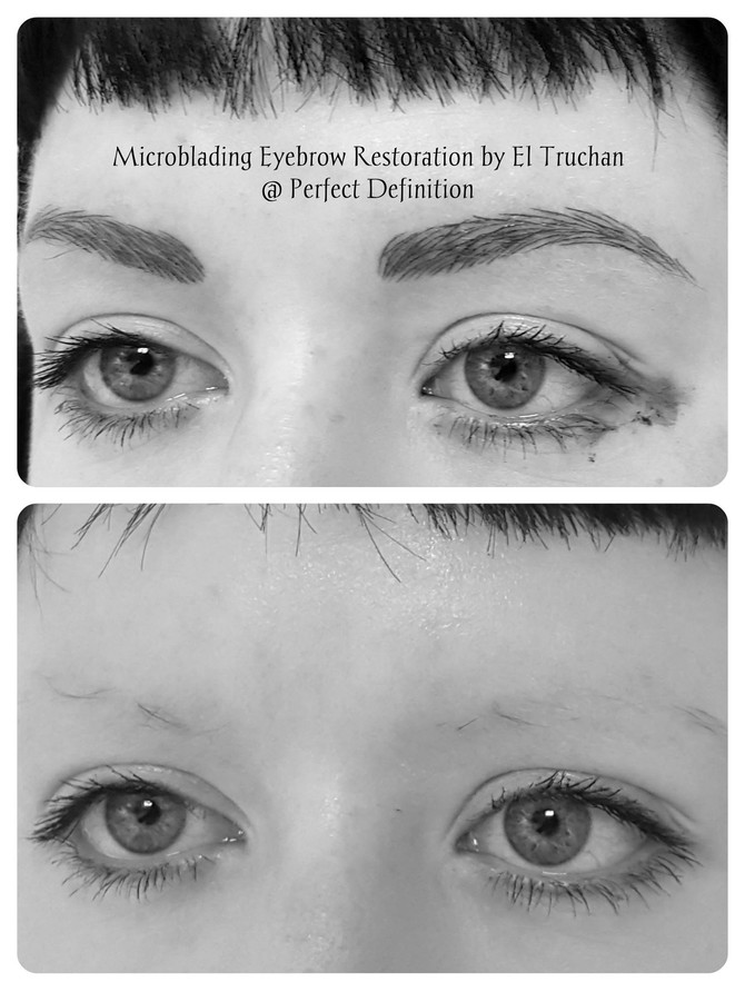Eyebrow Reconstruction Microblading By El Truchan @ Perfect Definition