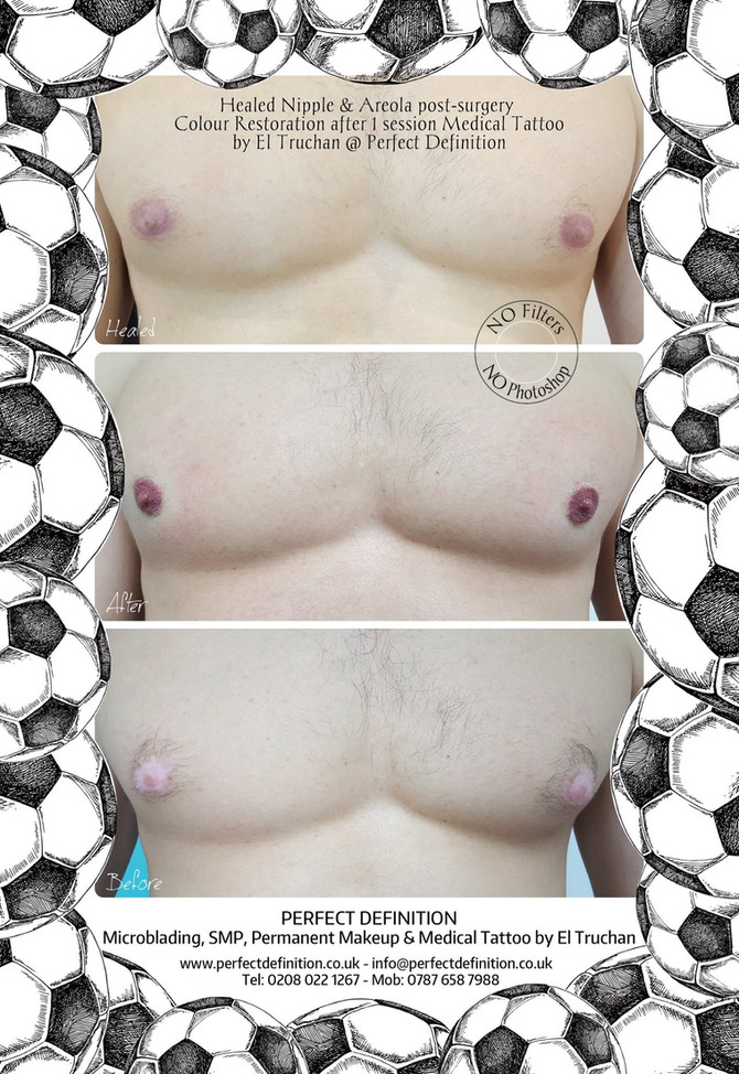 Healed Nipple & Areola post-surgery Colour Restoration after 1 session Medical Tattoo by El Truc