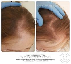 1st session Female Scalp Micropigmentati