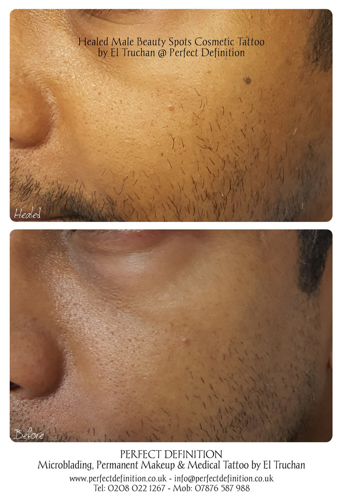 Healed Male Beauty Spots Cosmetic Tattoo by El Truchan @ Perfect Definition