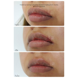 Healed Lip Scarring Camouflage