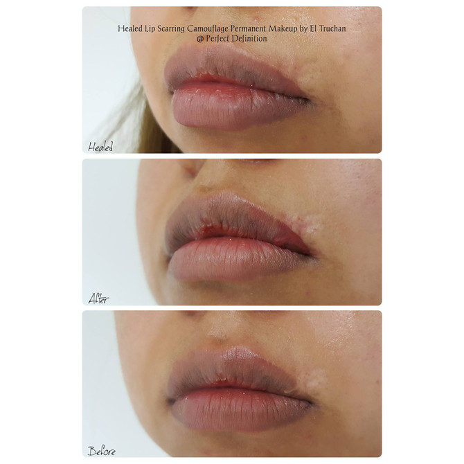 Healed Lip Scarring Camouflage Permanent Makeup by El Truchan @ Perfect Definition