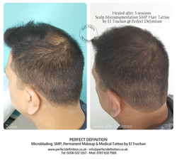 Healed after 3 sessions Scalp Micropigme