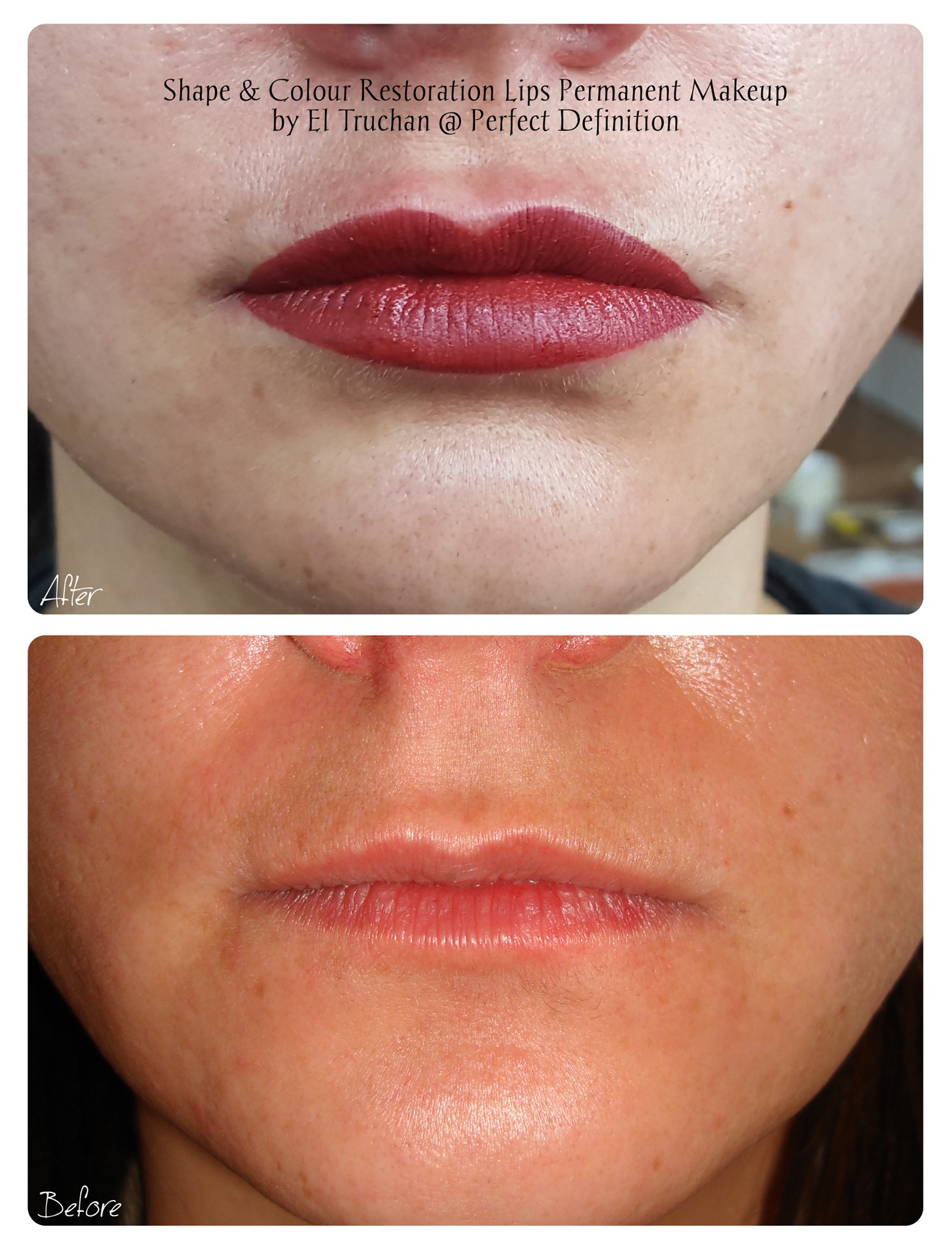 Shape & Colour Restoration Lips Permanen