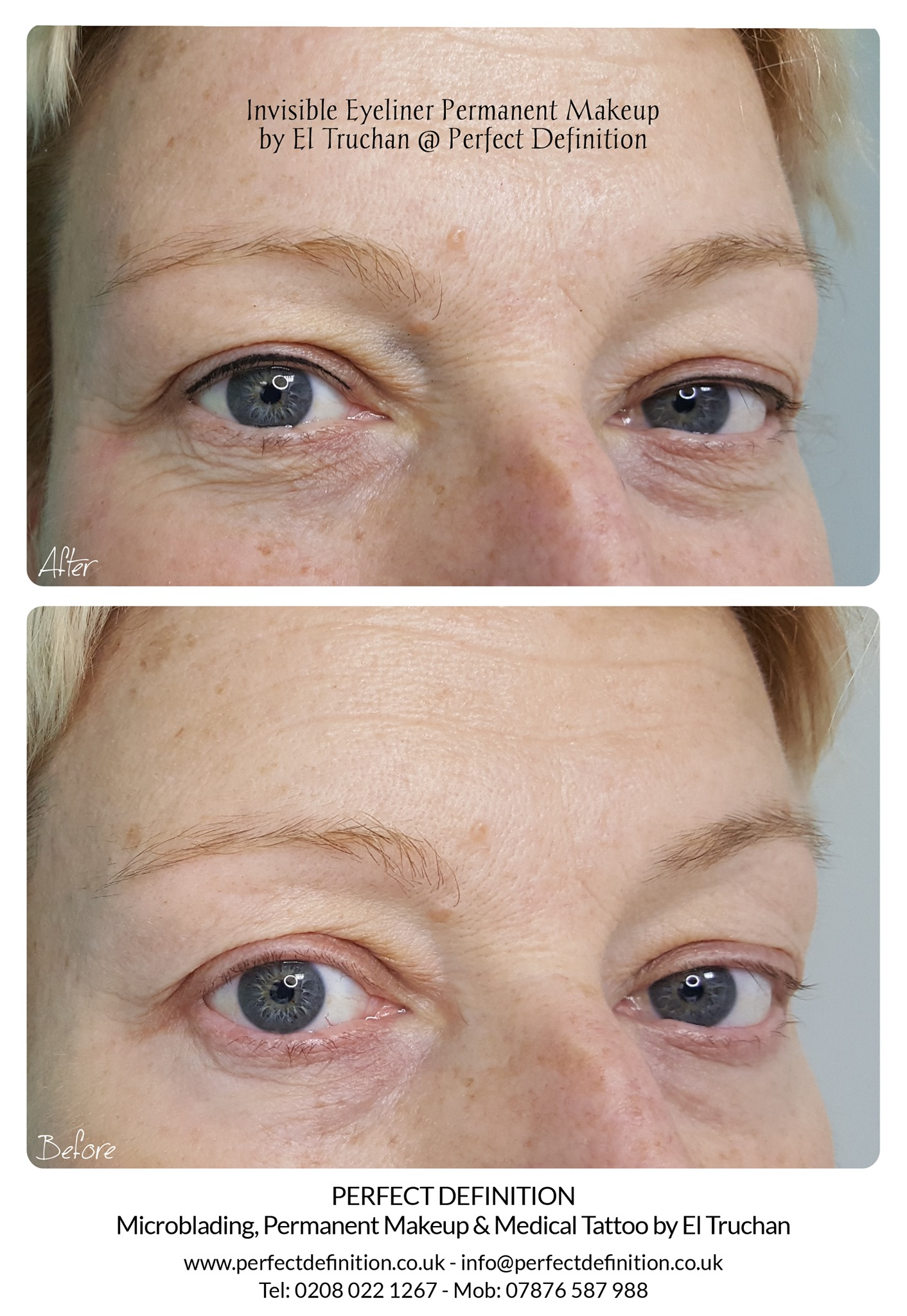 Invisible Eyeliner Permanent Makeup by E