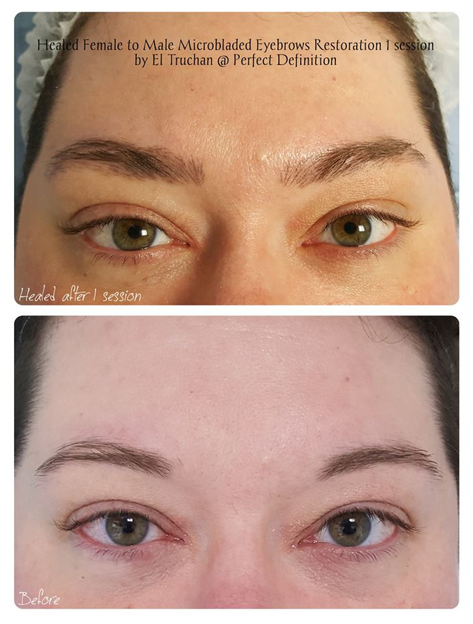 Healed Female to Male 1 visit Microbladed Eyebrows Restoration by El Truchan @ Perfect Definition