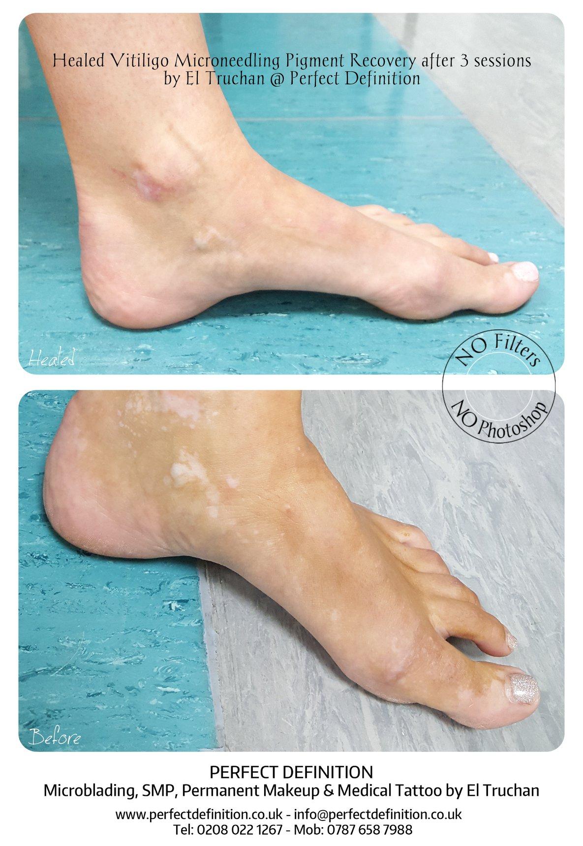 Healed Vitiligo Microneedling Pigment Re