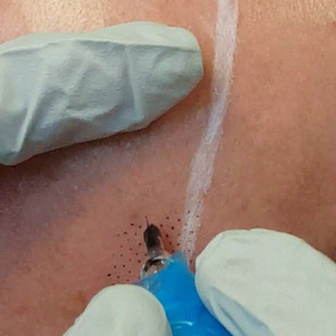 Male Scalp Micropigmentation by El Truch