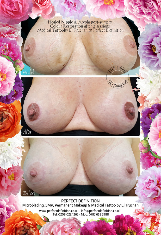 Healed Nipple & Areola post-surgery Colour Restoration after 2 sessions Medical Tattoo by El Truchan
