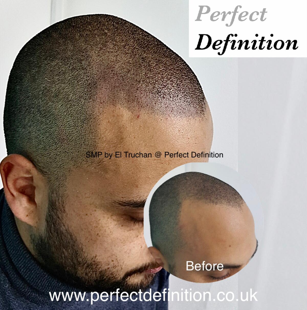 SMP by El Truchan at Perfect Definition.