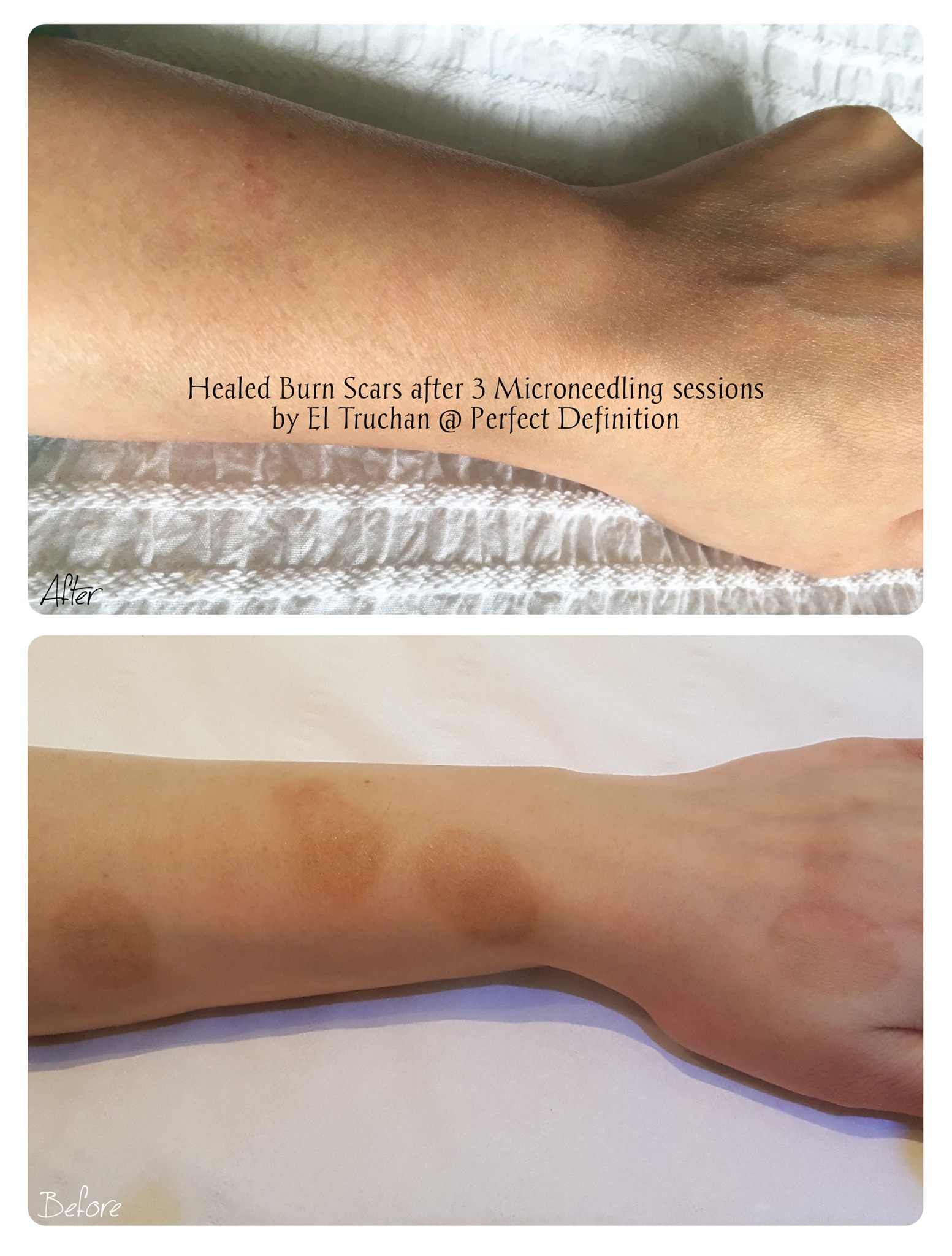 Healed Burn Scars after Microneedling Se